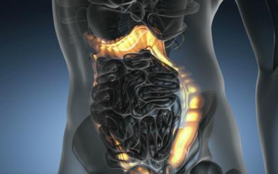 Darmkrebs Vorsorge – Fakten und Zahlen zur Darmkrebserkrankung